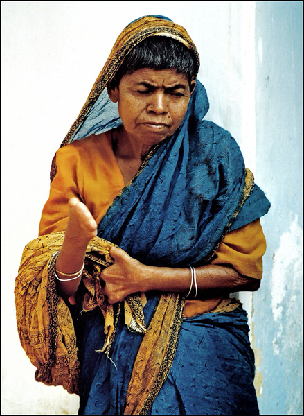 Leprosy Patient - Bengal - Travels Abroad